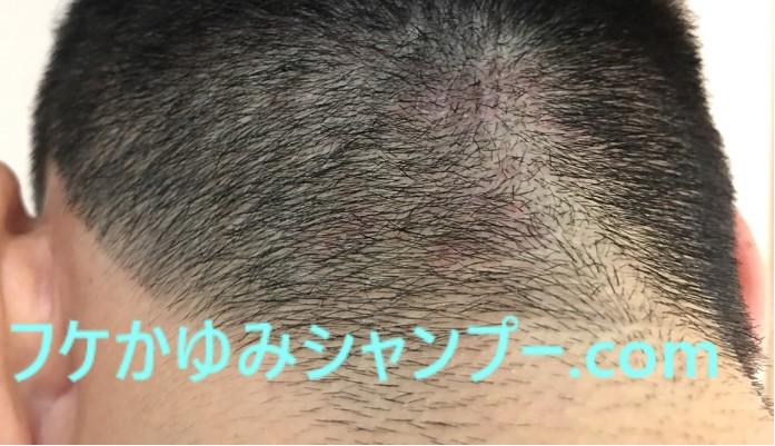 ただれた頭皮